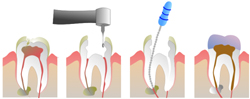 tooth pulp