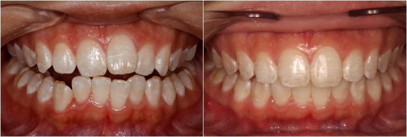 Before and After Images In 6month Smiles