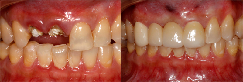 Before & After Images Dental Bridge Treatments