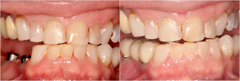 Before&After images Dental Implant Treatments