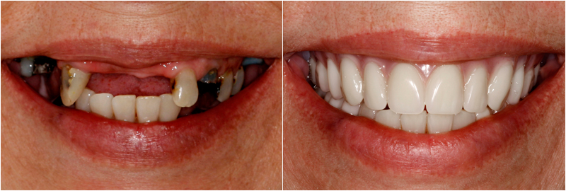 Before&After images in Dentures Dublin Ohio