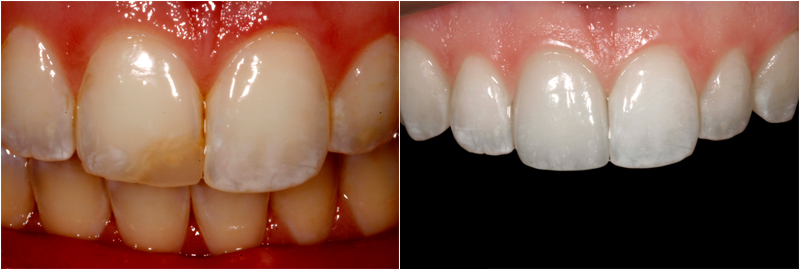 Before and After Images In Porcelain Veneers