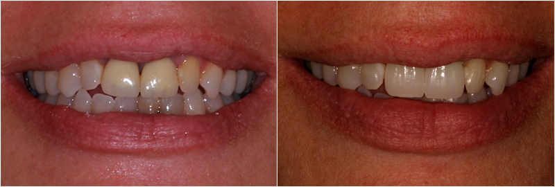 Before&After images in Porcelain Crowns