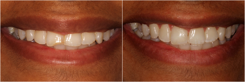 Before and After Images in Tooth Bonding Dublin Ohio
