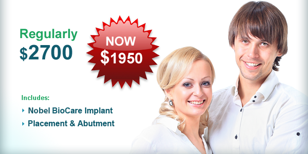 Dental Implants Offer