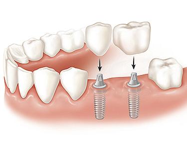 replacing multiple teeth