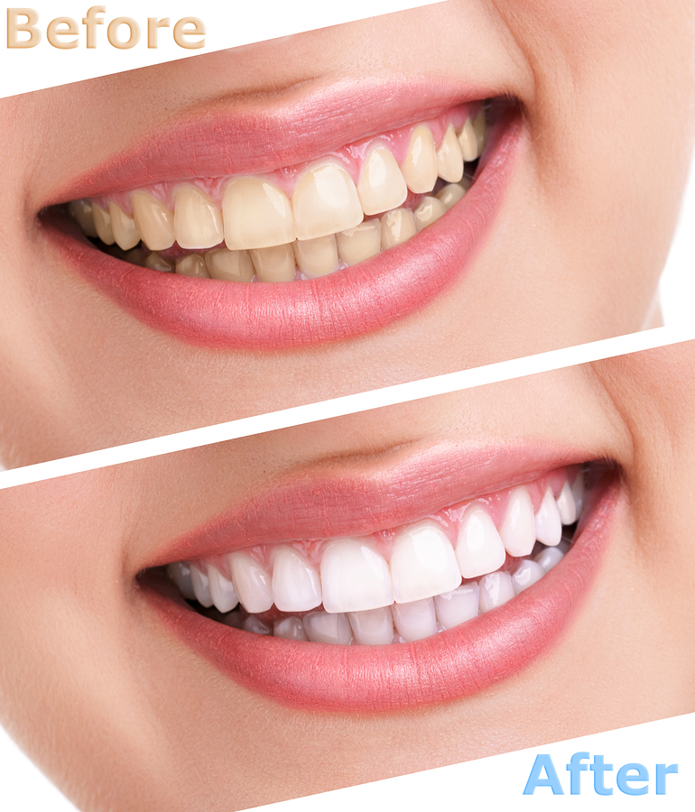 get the right dental treatment for your normal oral health