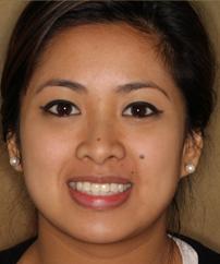 Kaira – 2 Noble Biocare Dental Implants & 2 Porcelain Crowns
