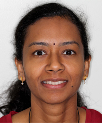 Raji – Invisalign Treatment