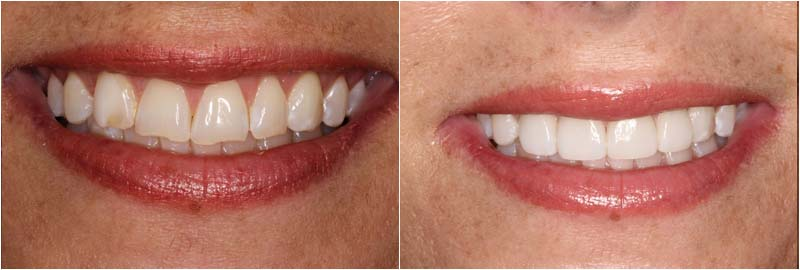 porcelain veneers dentist dublin ohio i natural looking